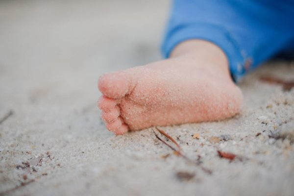 piede piatto bambino